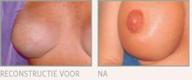 Afbeeldingsresultaat voor borsten reconstructie
